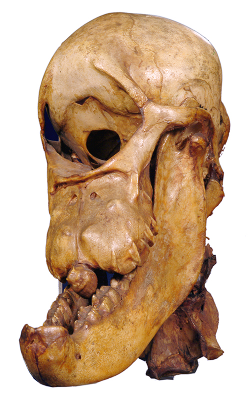 Photograph of the 'Bunyip skull', later identified by William Sharp Macleay (1792-1865) as a malformed horse foetus.